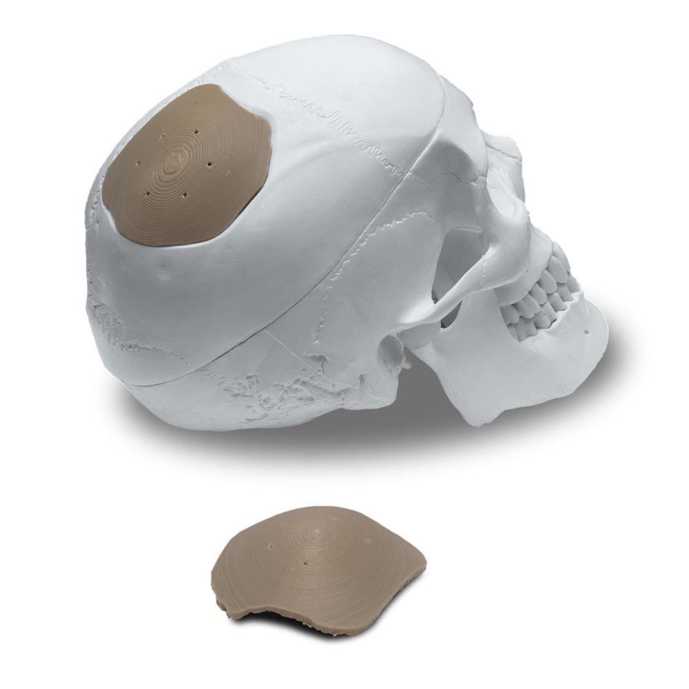 Cranioplasty showcase small - 3D-Druck-Trends